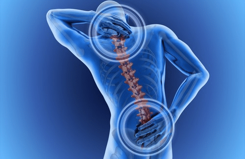 A slipped disc in the back and neck